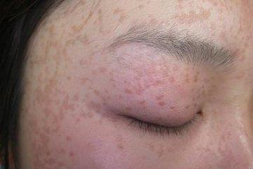 合肥肤康皮肤病医院:治疗扁平疣
