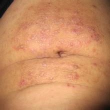 皮肤瘙痒治疗原则都有什么